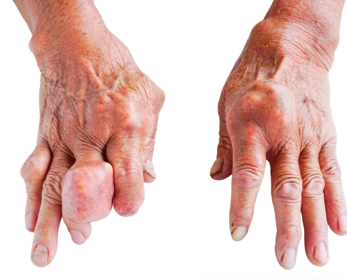 Hands Of Gout Patient